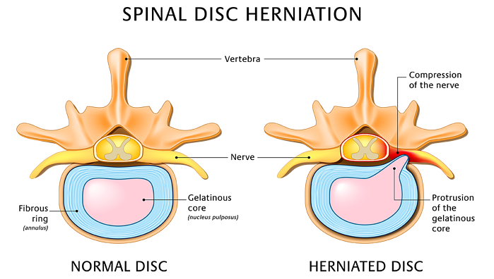 Schema herniated disc